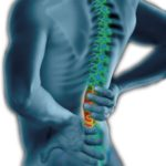 Why do we have back pain?